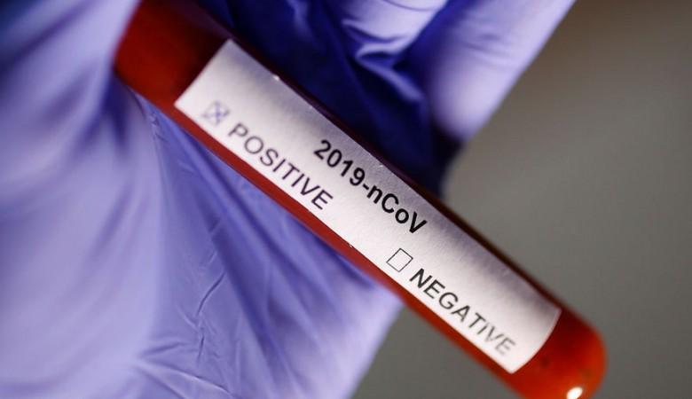 В Севастополе за сутки выявили один случай коронавируса